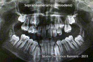 Casi clinici ortodontici Mesiodens http://www.studiodentisticobalestro.com/2011/08/dente-soprannumerario-mesiodens_30.html