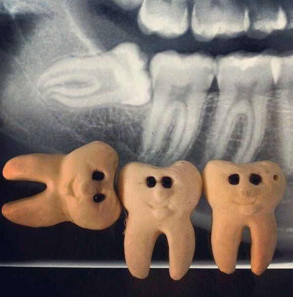 Dentaltown - Do you swear to pull the tooth, the whole tooth, and nothing but the tooth?