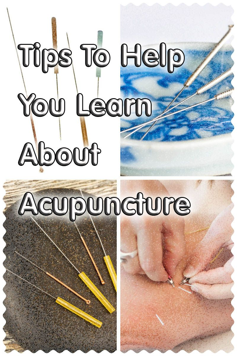 Great Tips About Acupuncture That Anyone Can Use