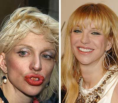 gallery for courtney love before and after drugs