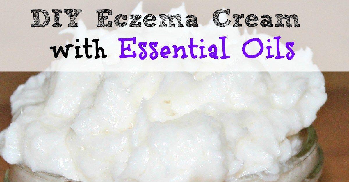 Best diy homemade eczema cream with essential oils