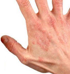 Дерматит — причины, симптомы и лечение дерматита ...
