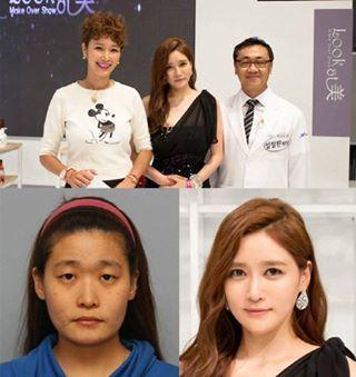 JW Plastic Surgery Korea Make over show