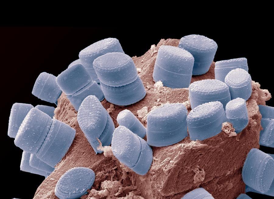 Diatoms on an alga, SEM Photograph - artificially colored
