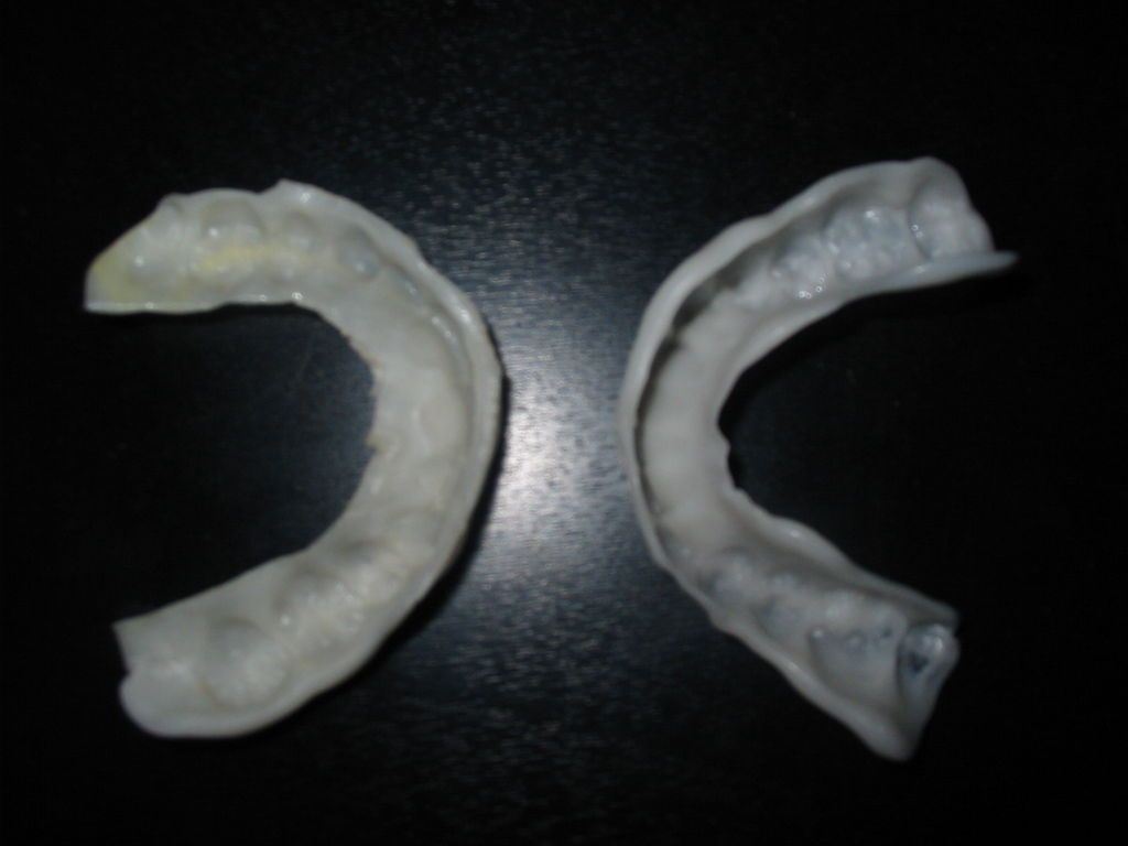 Make a night time orthodontic retainer diy teeth