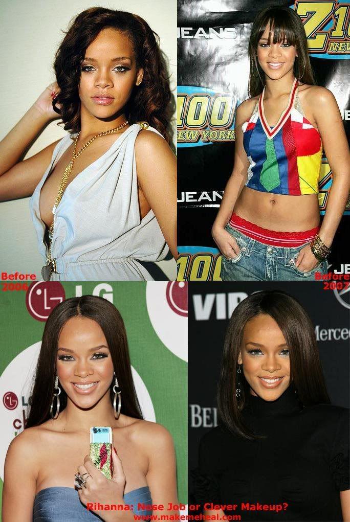 Rihanna Before After : rihanna, before, after, Rihanna, Photos,, Rihanna,, Before