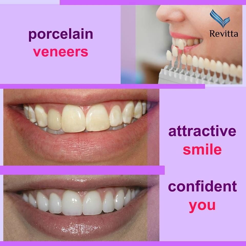 Few days ago my teeth was yellowish and I was upset, and one day my mouth was very smelly my friends told me that, I am really worried about that I could not talk to anybody and my smile was finished and then One friend sent me a link to a site http://goo.gl/qpGKDL when I am visiting the side, me surprised many guys says they had such a good site I know I'm not the first who visit the site but I am too much happy for got this beauty full site: http://reviewscircle.com/Teeth-Whitening-4-You