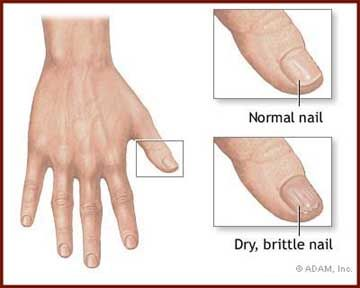 Finger Nail Diagram Article Brittle Nails