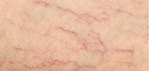 Você tem alguma delas em sua perna? As veias de aranhas são esses pequenos vasos sanguíneos que ...
