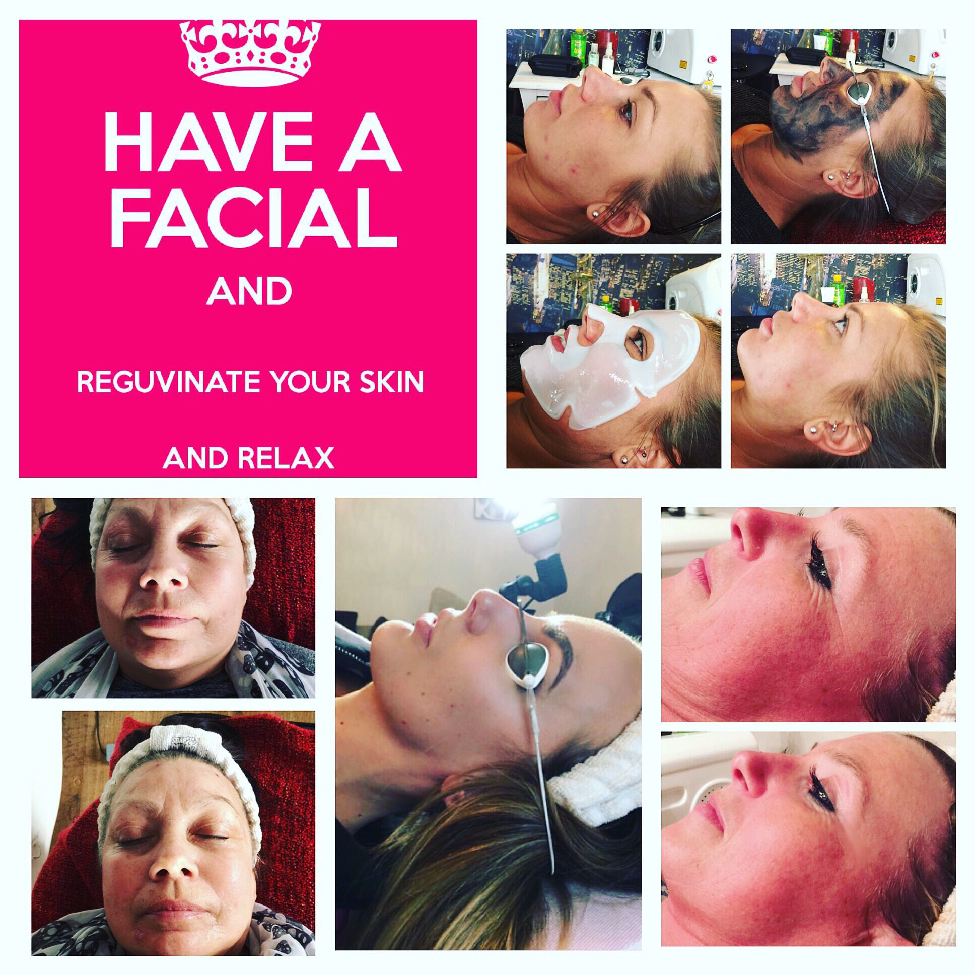 Before And After Pictures Of A Carbon Laser Facial Tattolaserremoval Tattooremoval Beauty Carbonfacials Laserfacials Ca Laser Facial Laser Removal Facial
