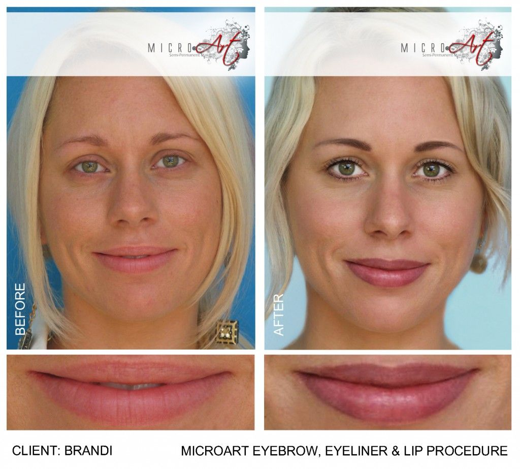 Before and after photos of microart semi permanent makeup