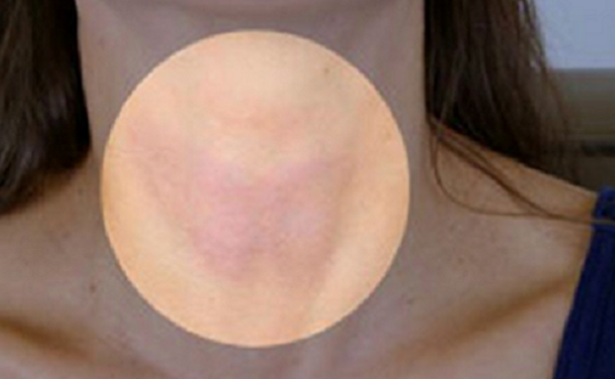 The Thyroid Is A Large Endocrine Gland Located In Your Neckthroat