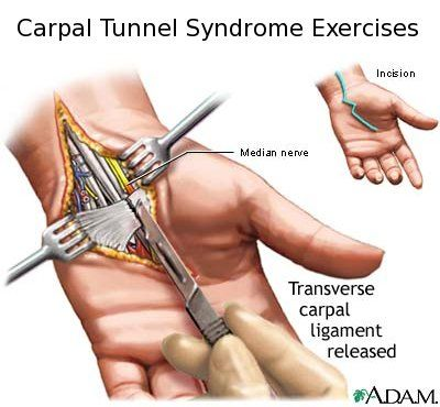 Carpal Tunnel Syndrome Exercises Go To You Tube And Search For