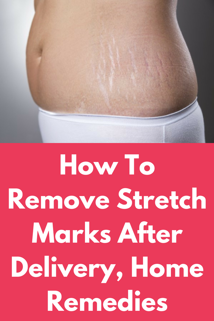 Pin On Stretch Marks