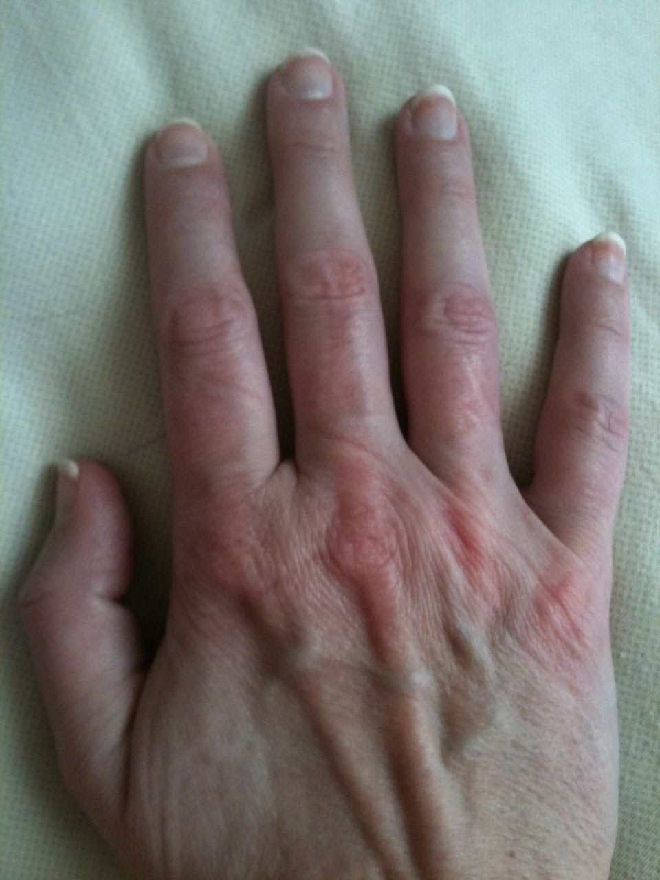 Lupus hands   life with lupus   Pinterest   Autoimmune disease and ...