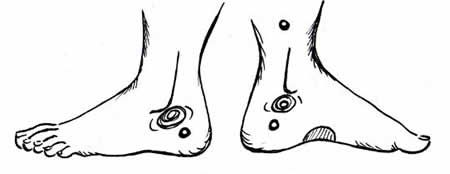 Reflexology Points To Induce Labor All Things Baby Reflexology