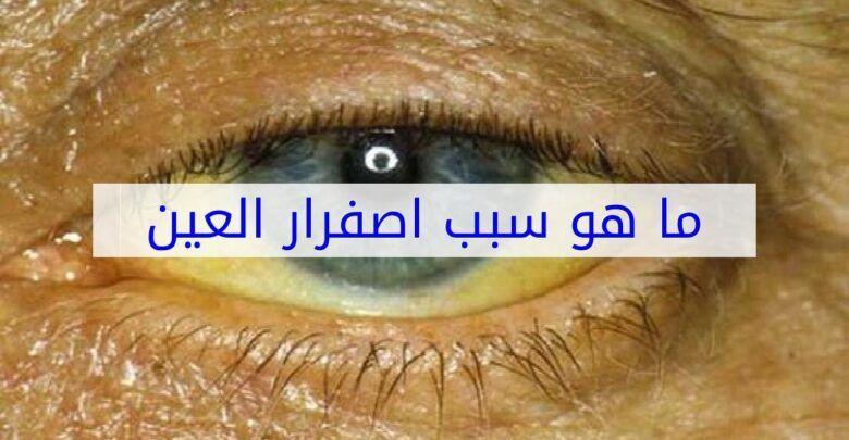 ما سبب اصفرار العين وأعراضها وتشخيصها وعلاجها
