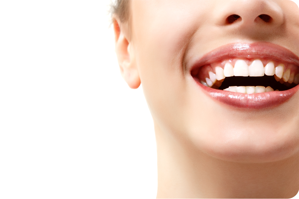 Menjawab Faq Memutihkan Gigi Q Bagaimana Cara Memutihkan Gigi