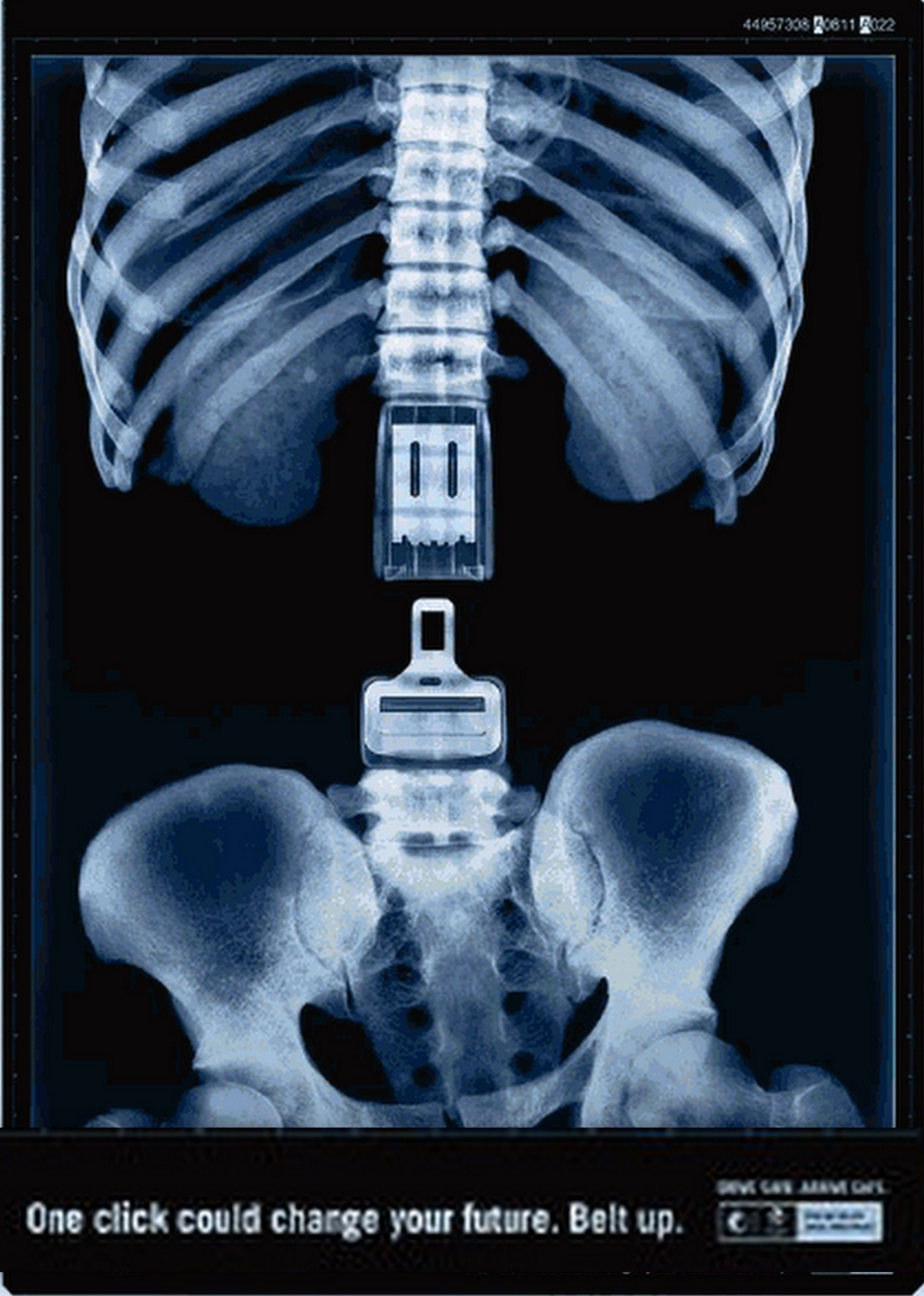 Advertisement shows how important it is to wear a seat belt. Quite graphic but tells everyone the disadvantages if you don't wear one. Makes people think about it as they need to think about wearing a seatbelt.