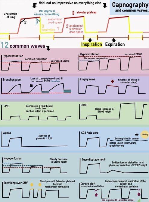 Capnography waveforms | Anatomi