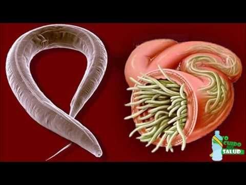 cómo deshacerse naturalmente de un parásito estomacal