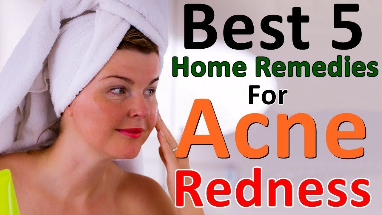 How to get rid of acne redness fast acne redness home