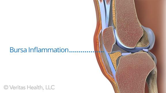 What Causes A Swollen Knee Water On The Knee Types Of Arthritis Reactive Arthritis Swollen Knee