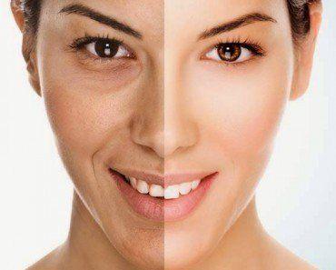 Los puntos negros son extremadamente frecuentes, así como desagradables. Ocurren en hombres y mujeres y que generalmente se localizan en la cara.