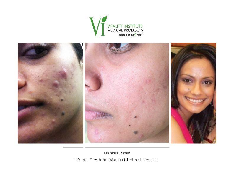Wedding Makeup Acne Scars : Acne results #vipeel, #acne, #freshskin VI Peel ...