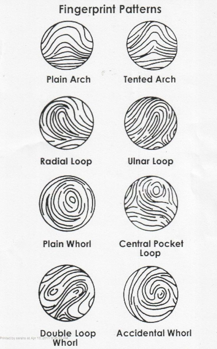 Fingerprint Types Google Search Forensic Science Forensics Science Classroom Decorations