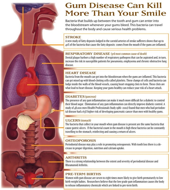 relationship between oral hygiene and heart disease