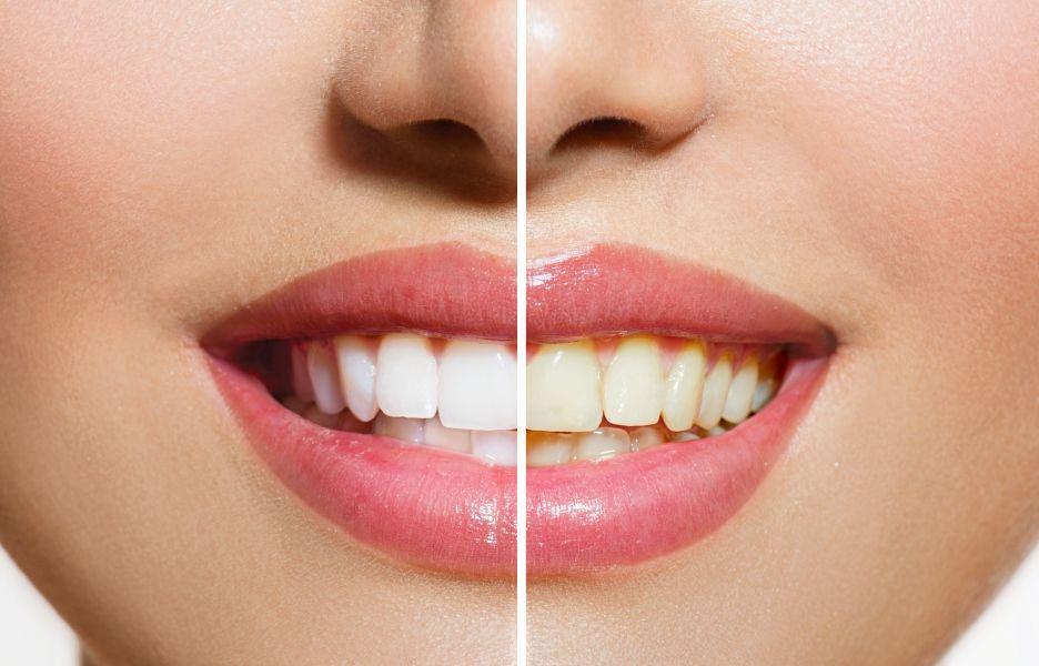 Clareamento Natural Veja 4 Dicas Para Ter Dentes Mais Brancos