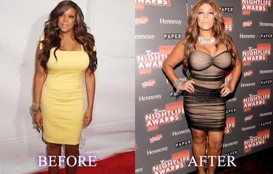 Wendy Williams Plastic Surgery | Celebrity Before After ...