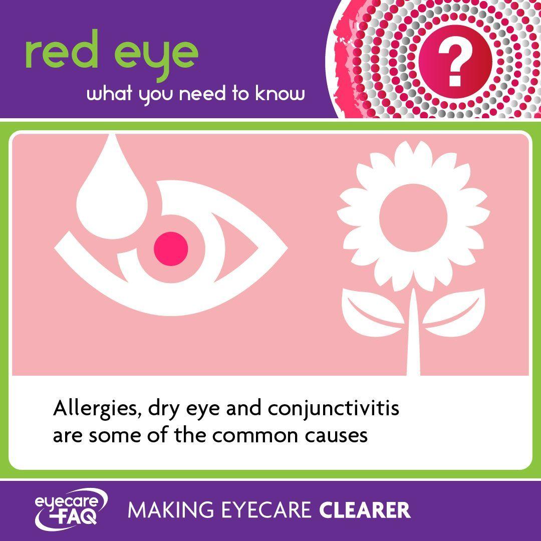 Red Eye Red eyes, Dry eyes, Eye care