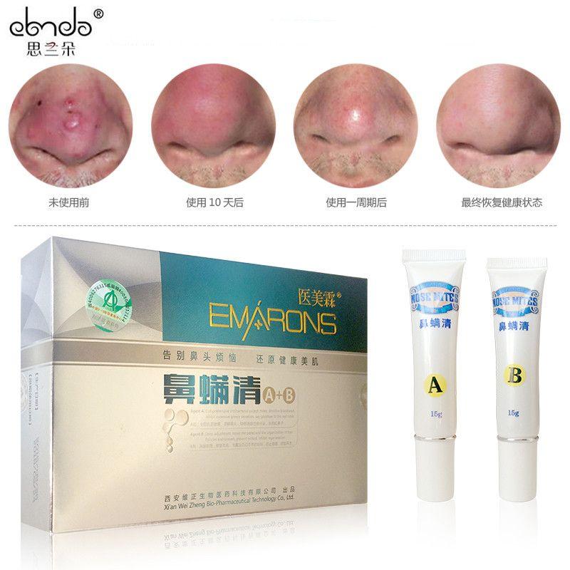 acne rosacea behandeling