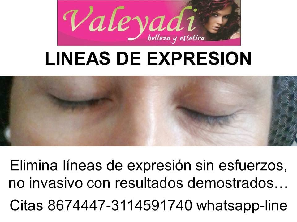VALEYADI: ELIMINA LINEAS DE EXPRESION