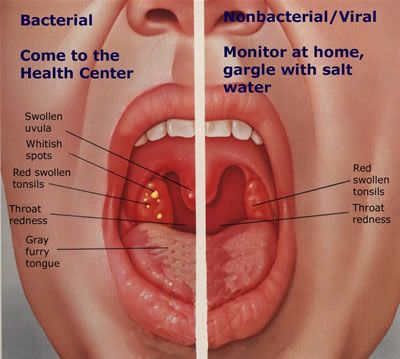 Great Strep Throat Infection Graphic Treatment For Sore Throat