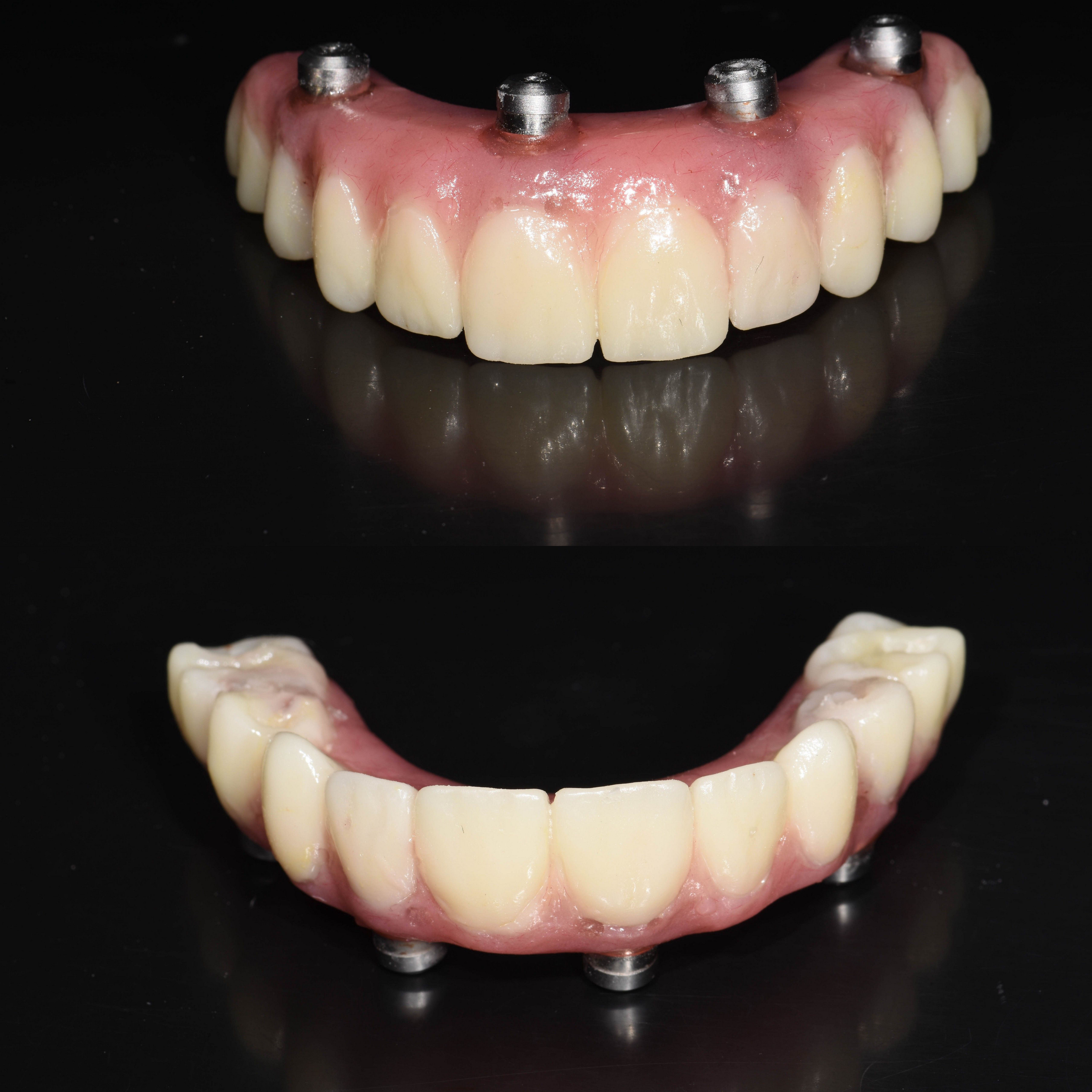 All On 4 Same Day Teeth Also Known As Hybrid Dentures These Are The Temporary Screwed In Teeth That The Patient Has At Time Of Dental Dentistry Family Dental