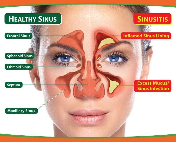 80b3004510d4acf84afe9a40394cfe87 - How To Get Rid Of Tooth Pain From Sinus Pressure