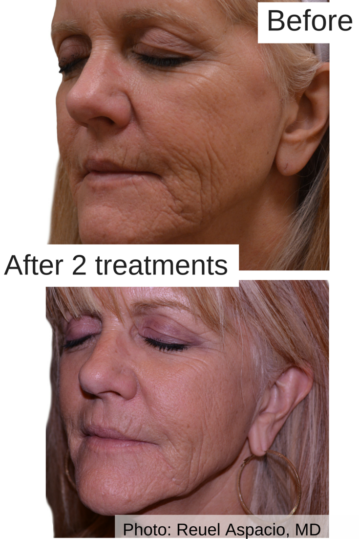 Say Goodbye To Wrinkles And Hello To Smooth Skin Again Venusviva Is Where Its At Venusbeauty Skin Resurfacing Treatment Skin Resurfacing Skin