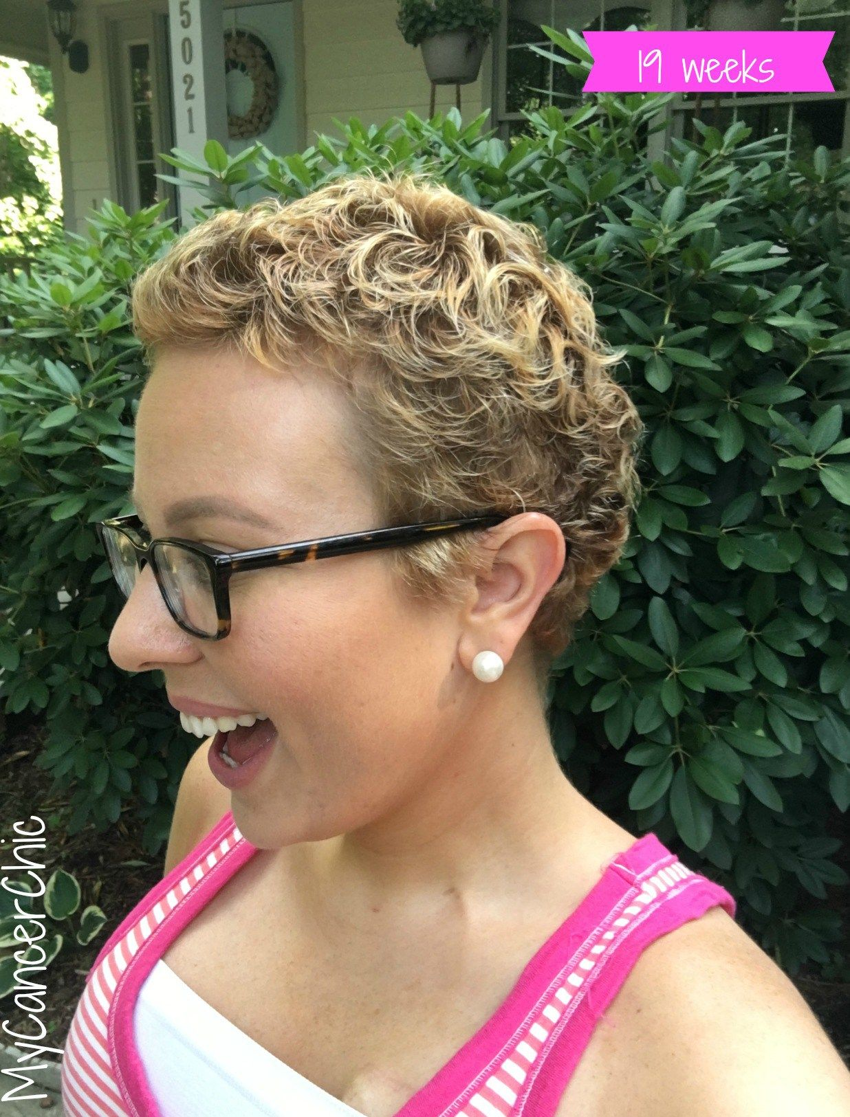 chemo regrowth: how to style your short hair | hair loss