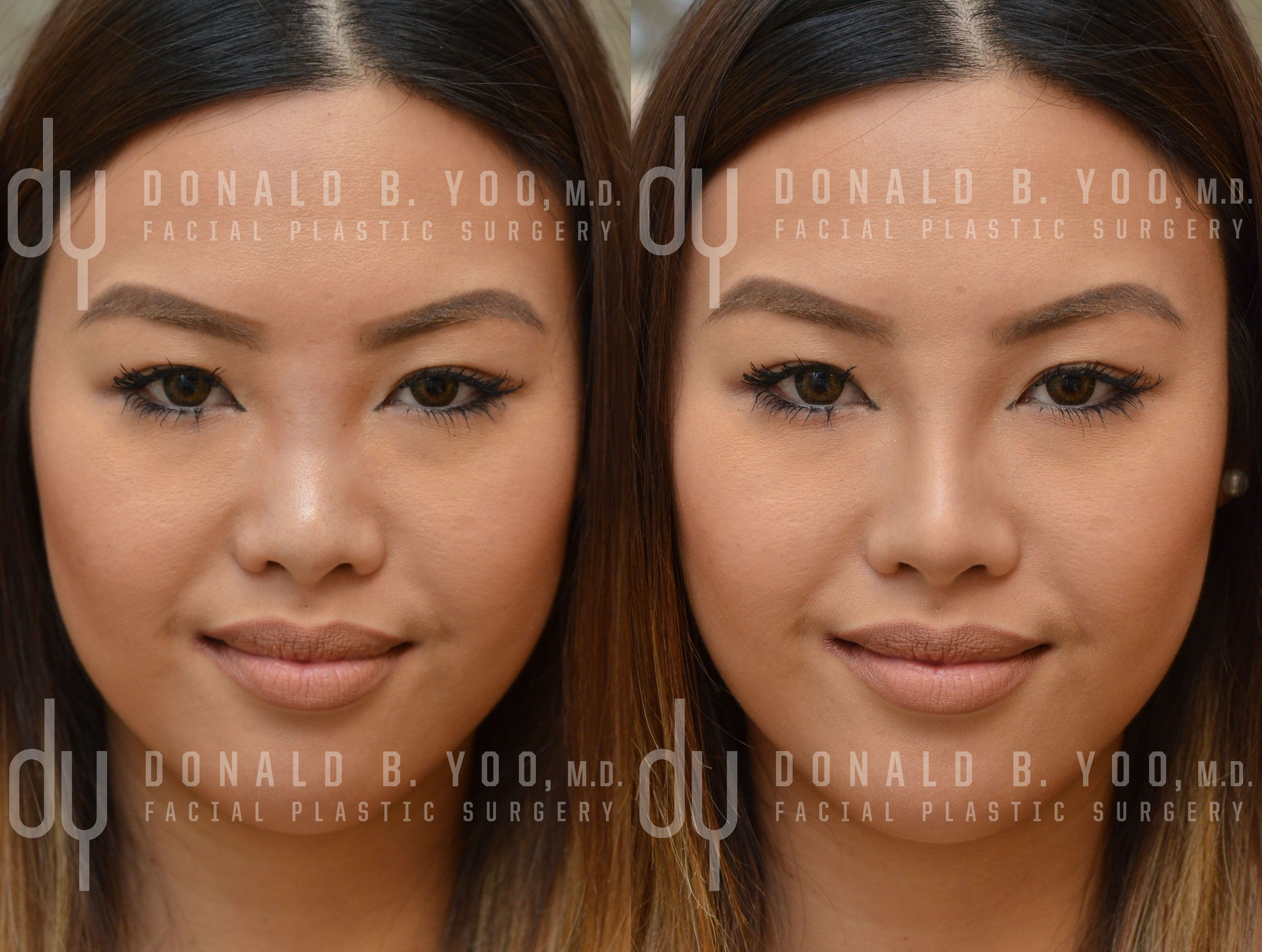 Beverly Hills Rhinoplasty Specialist Dr Donald Yoo Performed A Nonsurgical Rhinoplasty With Restyla Facial Plastic Surgery Facial Plastic Nonsurgical Nose Job
