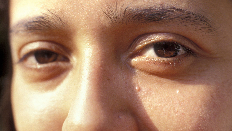 80b51784840021a9ac778251a5bc0602 - How To Get Rid Of Hard White Bumps On Face