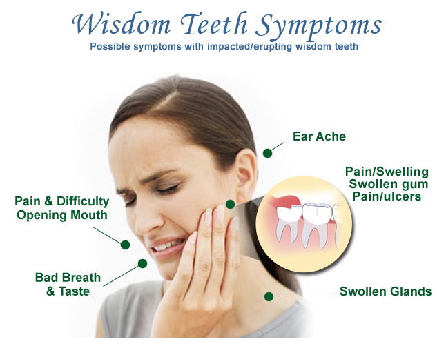 Wisdom teeth are a third set of molars in the back of your