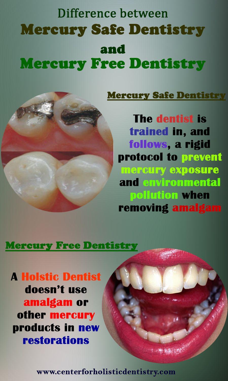 Knowing amalgam fillings contains 45 55 mercury