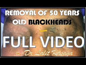 REMOVAL OF 50 YEARS OLD BLACKHEADS FULL VIDEO by DR LALIT KASANA
