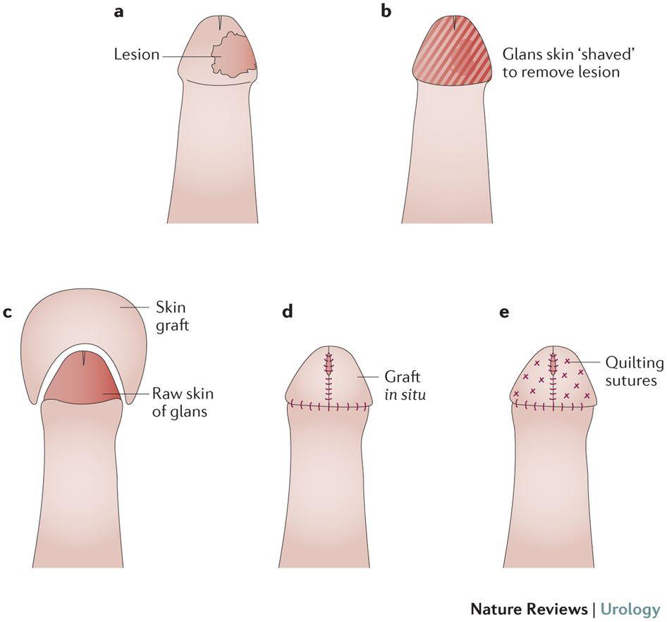 Surgical Technique For Glans Resurfacing Nurse Medical Medical