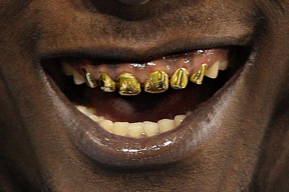 таких является смешные картинки про золотые зубы время