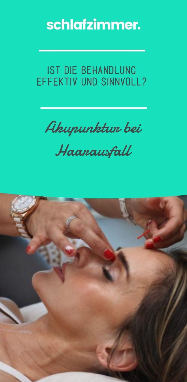 Akupunktur ist eine alternative medizinische Therapie. Akupunktur wurde vor Tausenden von Jahren in China populär gemacht und wird seit Jahrhunderten zur Behandlung einer Reihe von Erkrankungen und Krankheiten eingesetzt, von Rückenschmerzen bis hin zu Kopfschmerzen. Erfahre hier, ob Akupunktur bei Haarausfall helfen kann. #akupunktur #haare #haarausfall