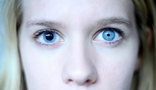 Ummm Two Different Sized Pupils Indicate Recent Brain Damage Sooo Use In Book 2 Pretty Eyes Beautiful Eyes Eyes